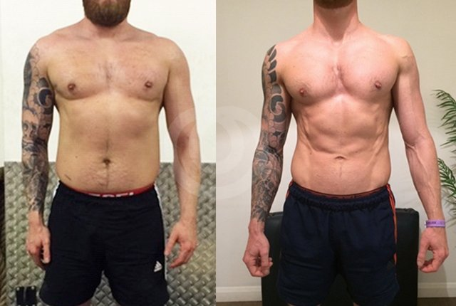 RyanFrontBeforeAfter